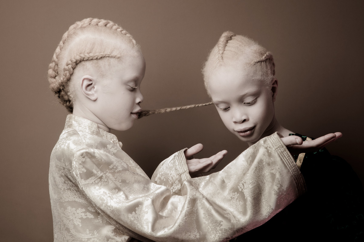 The chances of a child being born with albinism are 1 in 17,000. So it ...